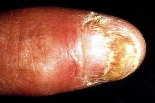Onychodystrophy of the thumbnail.